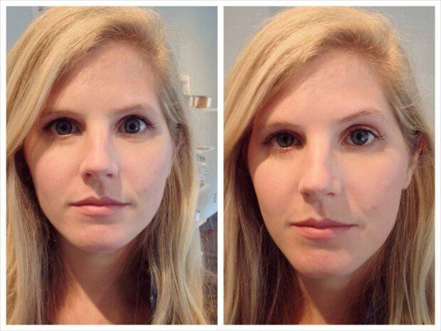 This is Jordan's before and after side by side. See how lifted her eyebrow and cheek area is after just 6 minutes?!