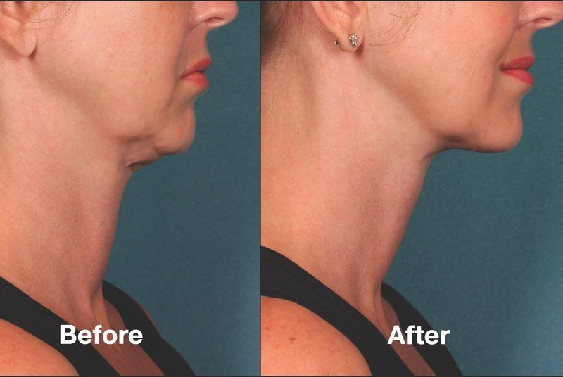 Look at the dramatic results this patient is enjoying thanks to Kybella.