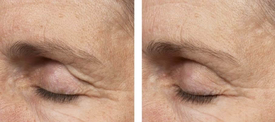 Thermage FLX before and after